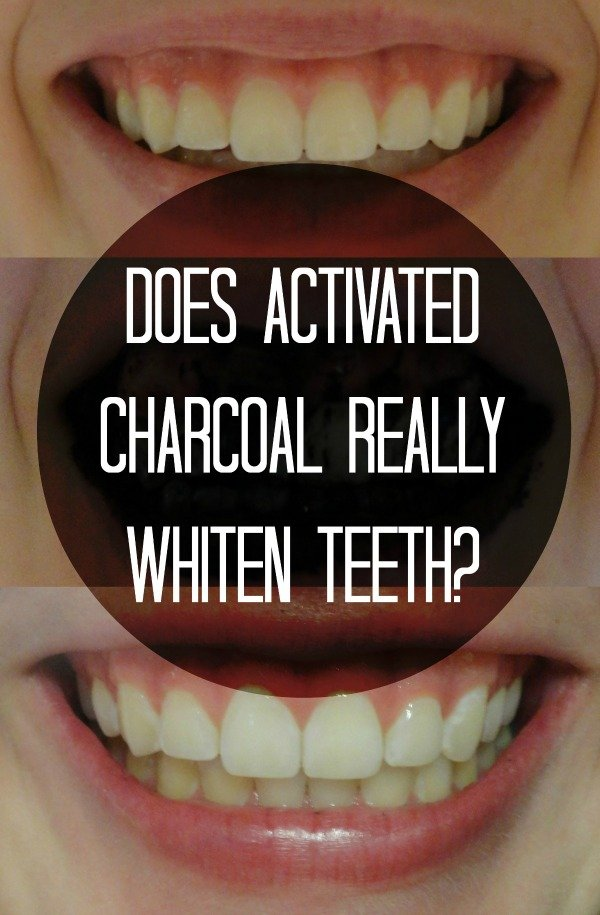 Find out everything that you need to know about activated charcoal and it's teeth whitening abilities!